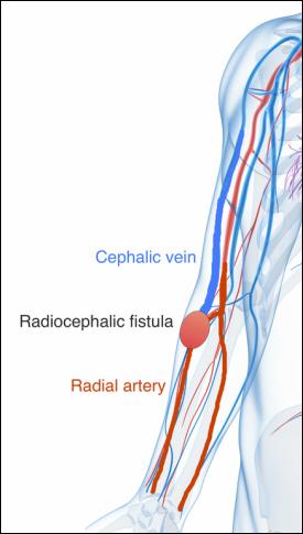 dialysis fistula, Human Body